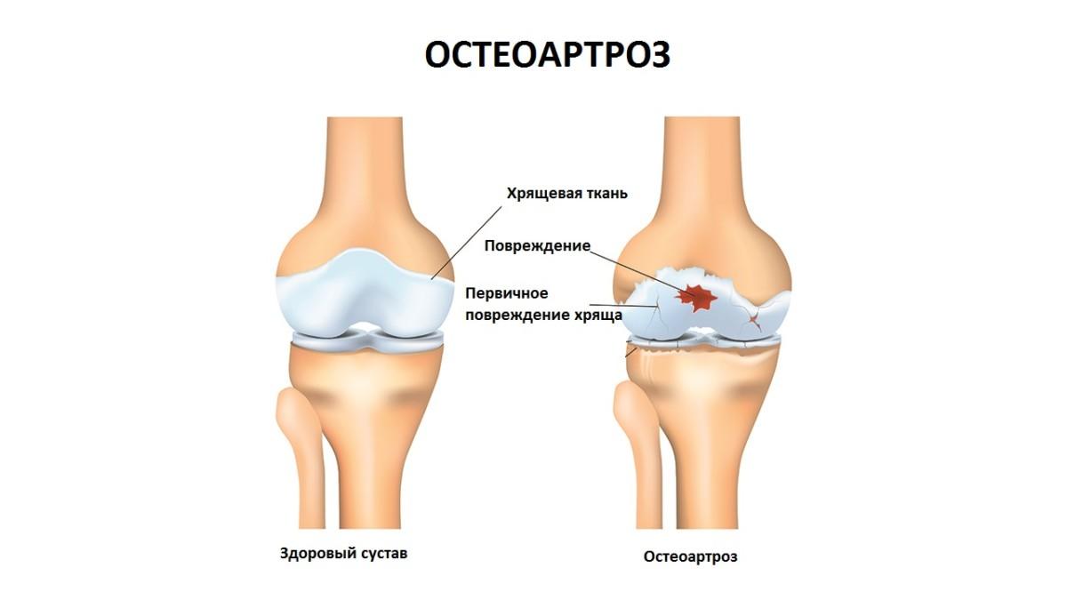 Остеоартроз: причины, симптомы и лечение