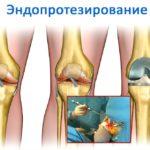 уральский нии травматологии эндопротезирование коленного сустава