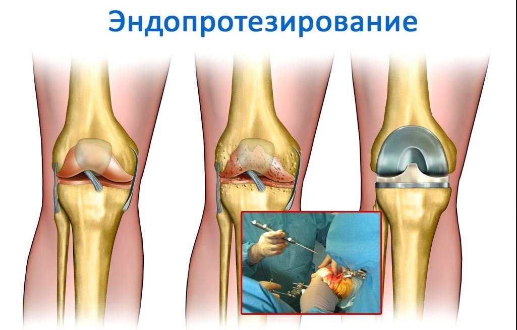 киста после эндопротезирования коленного сустава