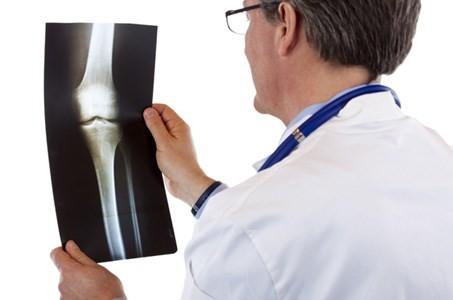Вопросы, которые стоит задать врачу перед эндопротезированием коленного сустава