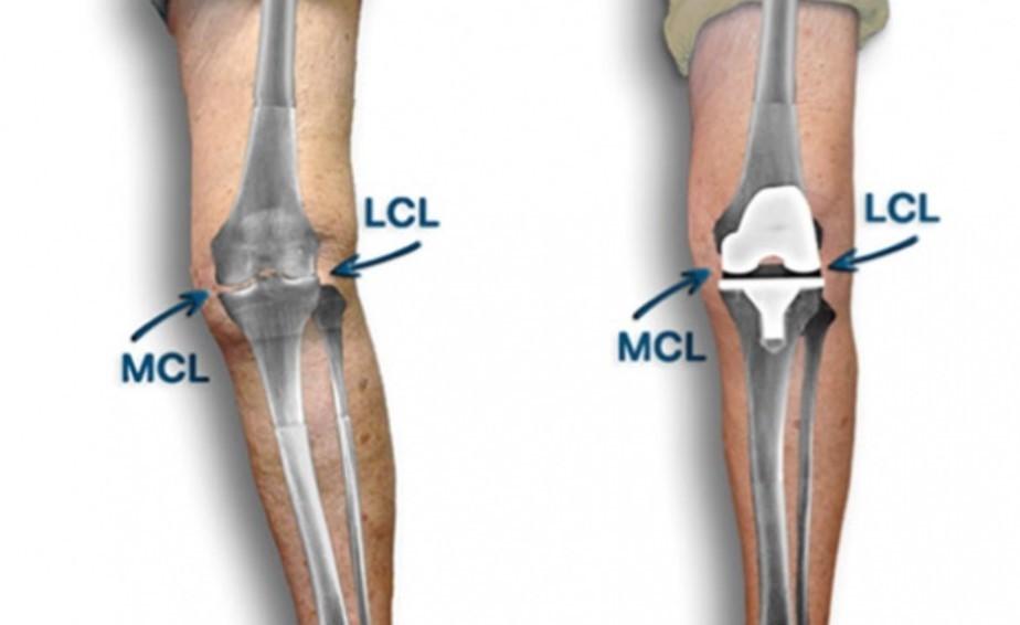 Будет ли колено выпрямлено с помощью операции?