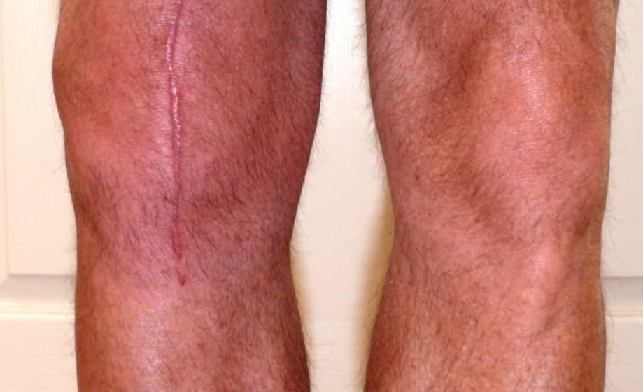 Возможные осложнения эндопротезирования коленного сустава