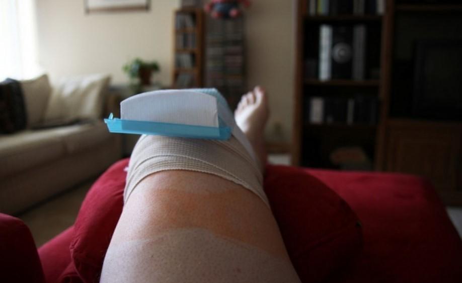 Сколько длится восстановление после эндопротезирования коленного сустава?