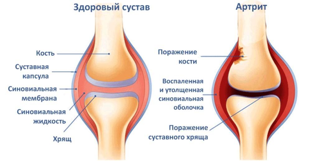 Ревматоидный артрит: беспокойство о будущем