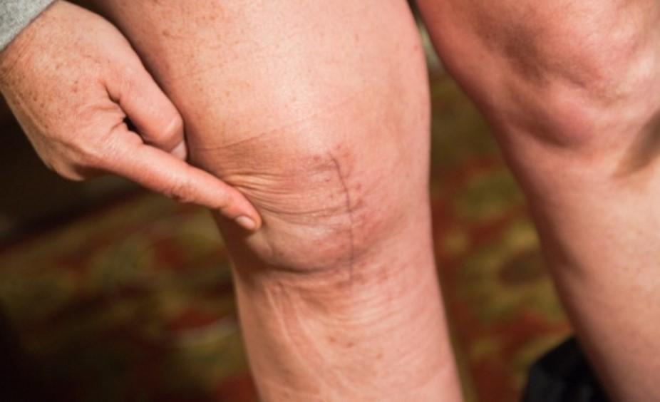 Какой успех эндопротезирования коленного сустава?